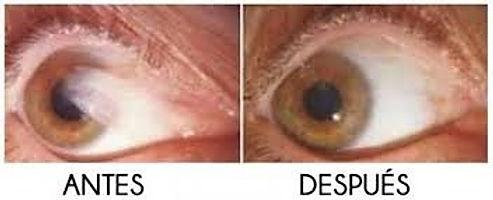 ojo con carniad antes de la cirugia en oftalmologia laser guadalajara, ojo despues de la crugia