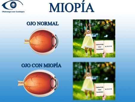 Operación para Miopía
