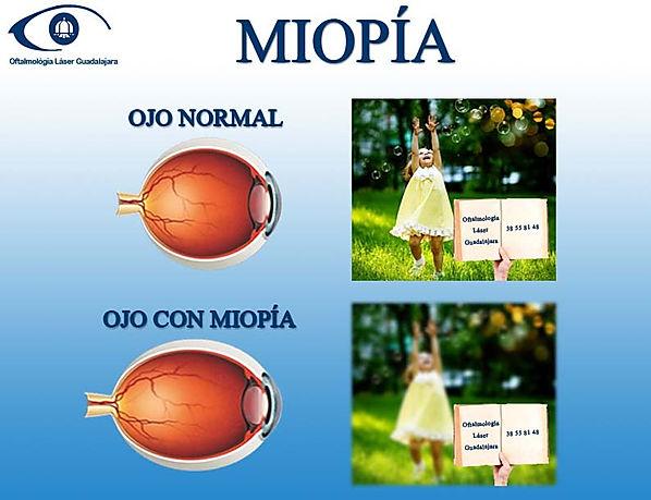 ojo con miopia y como ve, ojo sin miopia y como ve