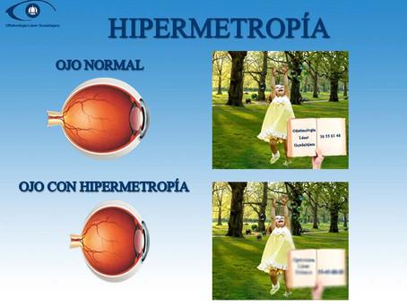 Hipermetropía: ¿Qué es, causas y como se corrige?