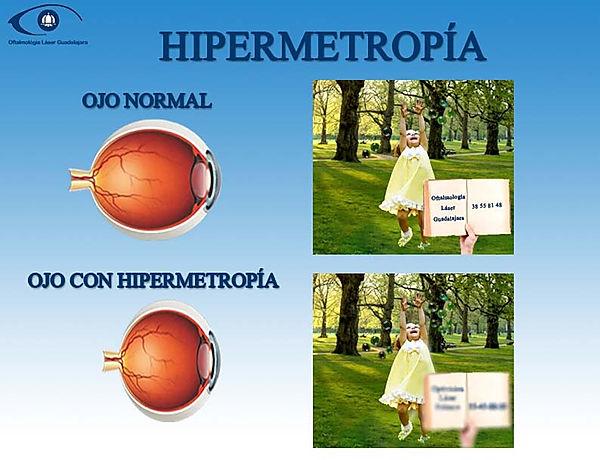 ojo normal como ve y ojo con hipermetropia como ve