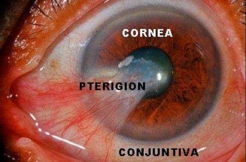 carnosidad en el ojo y partes del oo