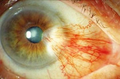 ojo con carnosiad muestra grafica