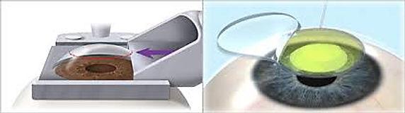 Proceso por el que se hace la cirugía lasik e Oftalmologia Láser Guadalajara