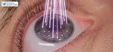 ojo en cirugia lasik en Oftalmologia Láser Guadalajara