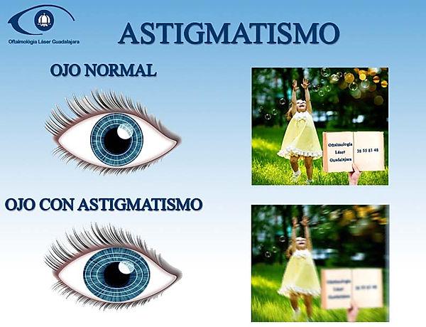 ojo normal y ojo cn astigmatismo como ve un ojo normal y como ve un ojo en astigmatismo