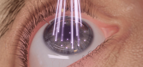 ojo en cirugía lasik en oftalmologia laser guadalajara