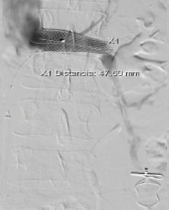 Post colocación de stent en zona de compresión
