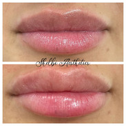Lip Filler