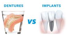 Dentures vs. Dental Implants
