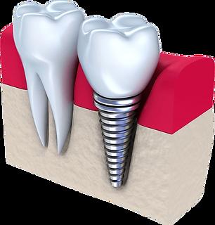 IMGBIN_dental-implant-dentistry-tooth-pn