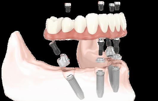 IMGBIN_all-on-4-dental-implant-dentistry