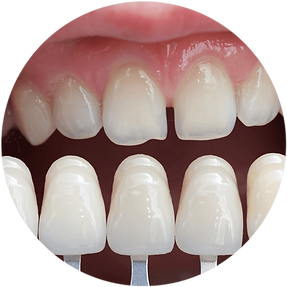 imgbin_veneer-cosmetic-dentistry-bridge-