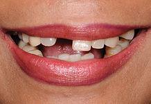 Dental Patient Before Treatment