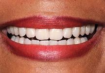 Dental Patient After Treatment
