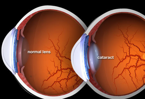 Cataracts 101 : An Explanation from WebMD