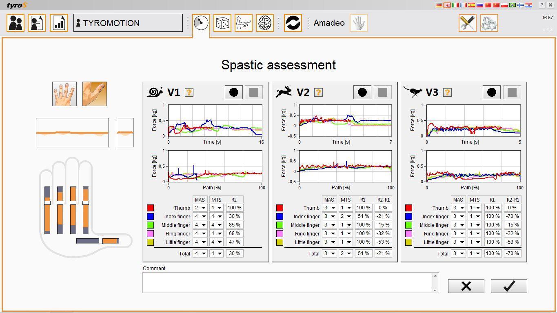 AMADEO_spastic_assessment.JPG