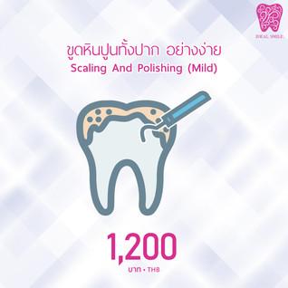 การขูดหินปูน วิธีกำจัดคราบแน่นหนึบบนฟัน