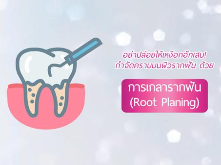 """กำจัดคราบบนผิวรากฟันด้วยการ """"เกลารากฟัน"""" (Root Planing)"""