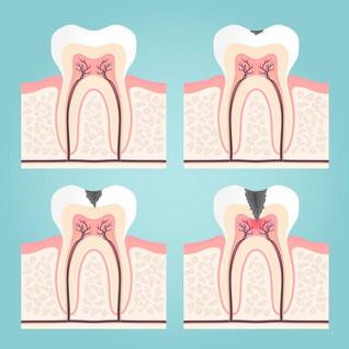 ฟันผุ (Dental caries) ป้องกันได้ด้วยตัวเรา