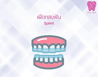 เฝือกสบฟัน (Occlusal Splint) เครื่องมือทันตกรรม แก้ปัญหาบดเคี้ยว