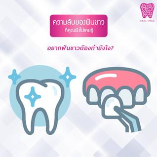 ฟอกสีฟัน / วีเนียร์ ความลับของฟันขาว ที่คุณยังไม่เคยรู้