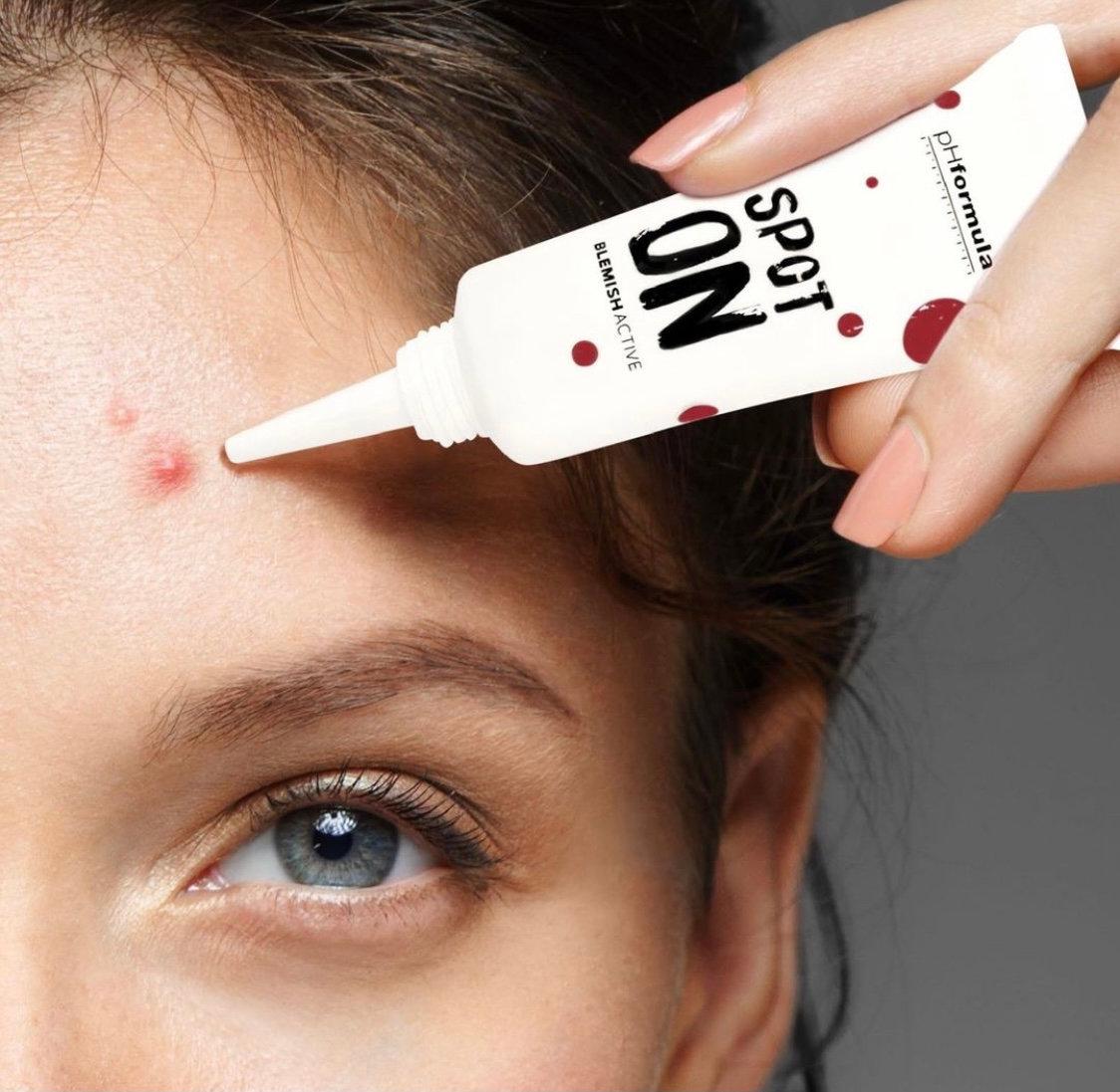 V&V dyprens uren/acne hud
