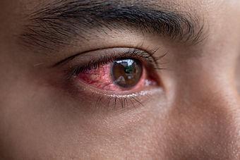 man-with-red-irritated-eyes.jpg