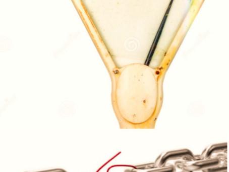 El cuento de la aguja inmóvil y el eslabón más débil