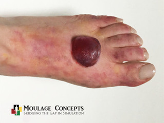 Moulage of the Month: Industrial Response, Fracture Blister