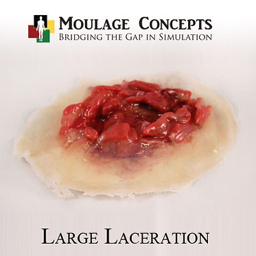 Large Laceration
