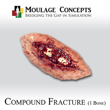 Compound Fracture (1 Bone)