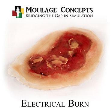 Electrical Burn
