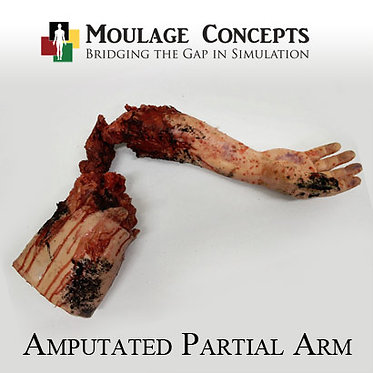 Amputated Partial Arm