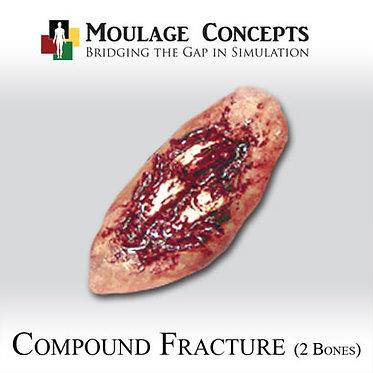 Compound Fracture (2 Bones)
