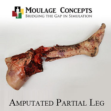 Amputated Partial Leg