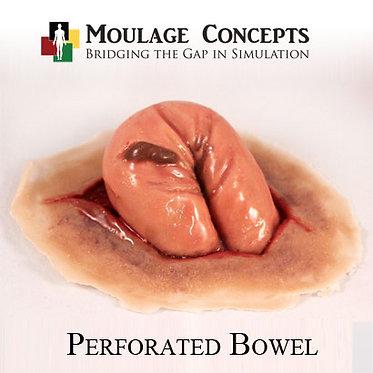 Perforated Bowel