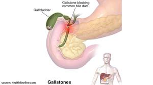 Causes of Gallbladder Stones