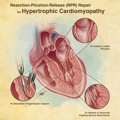 RPR Repair