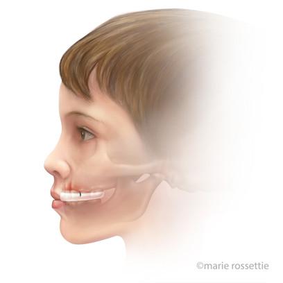 Post Operative Jaw Splint