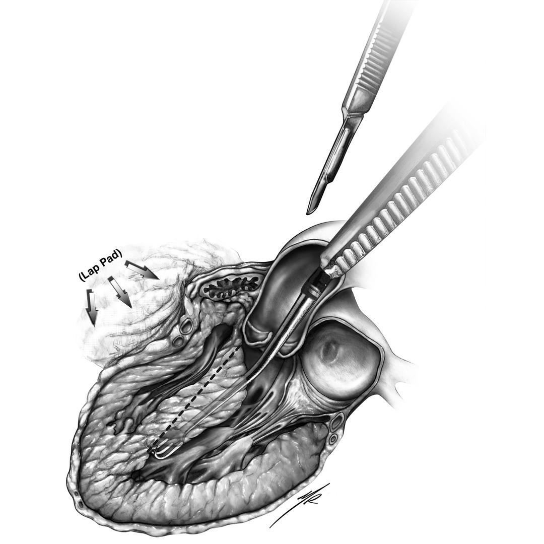 Myectomy