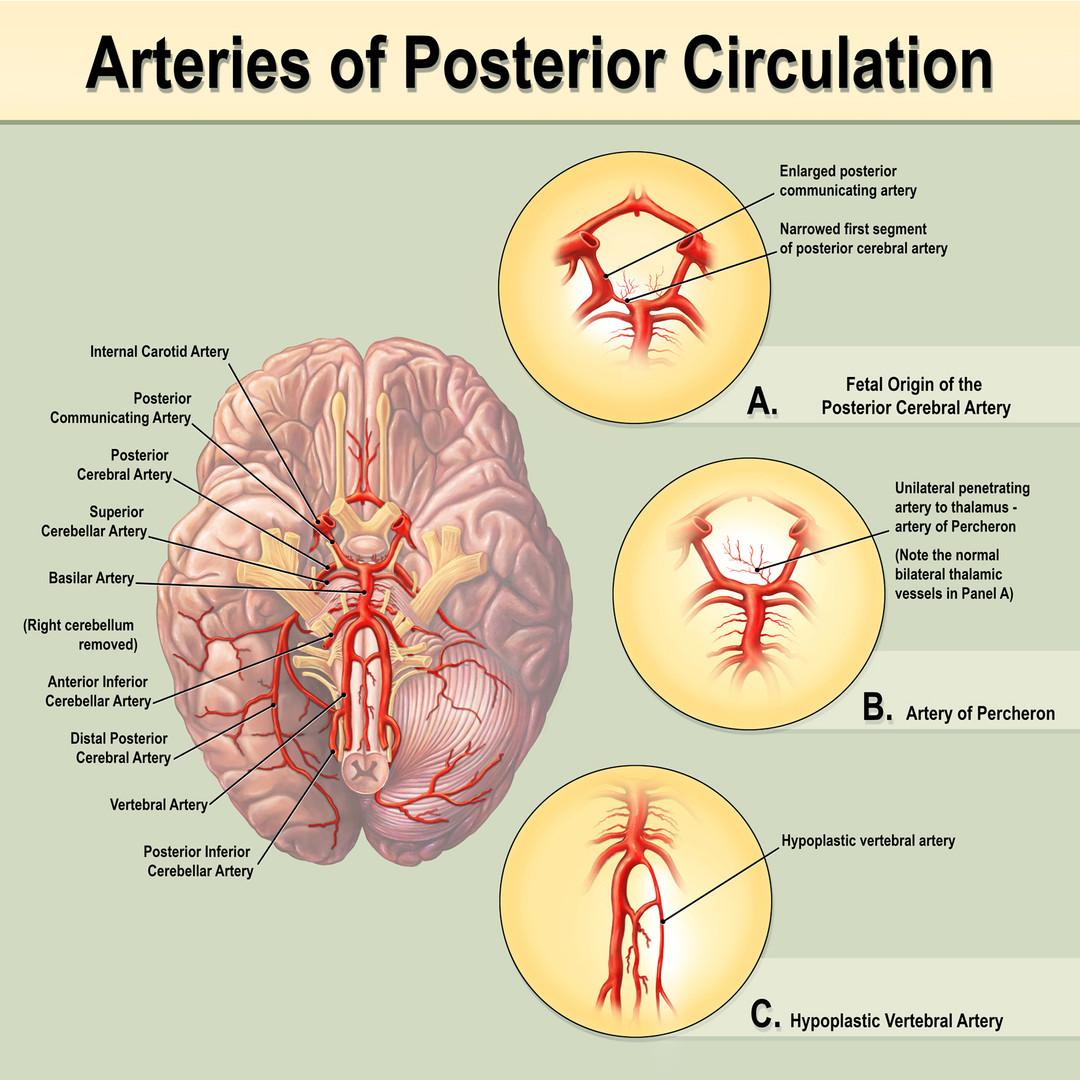 Arteries of Posterior Circulation
