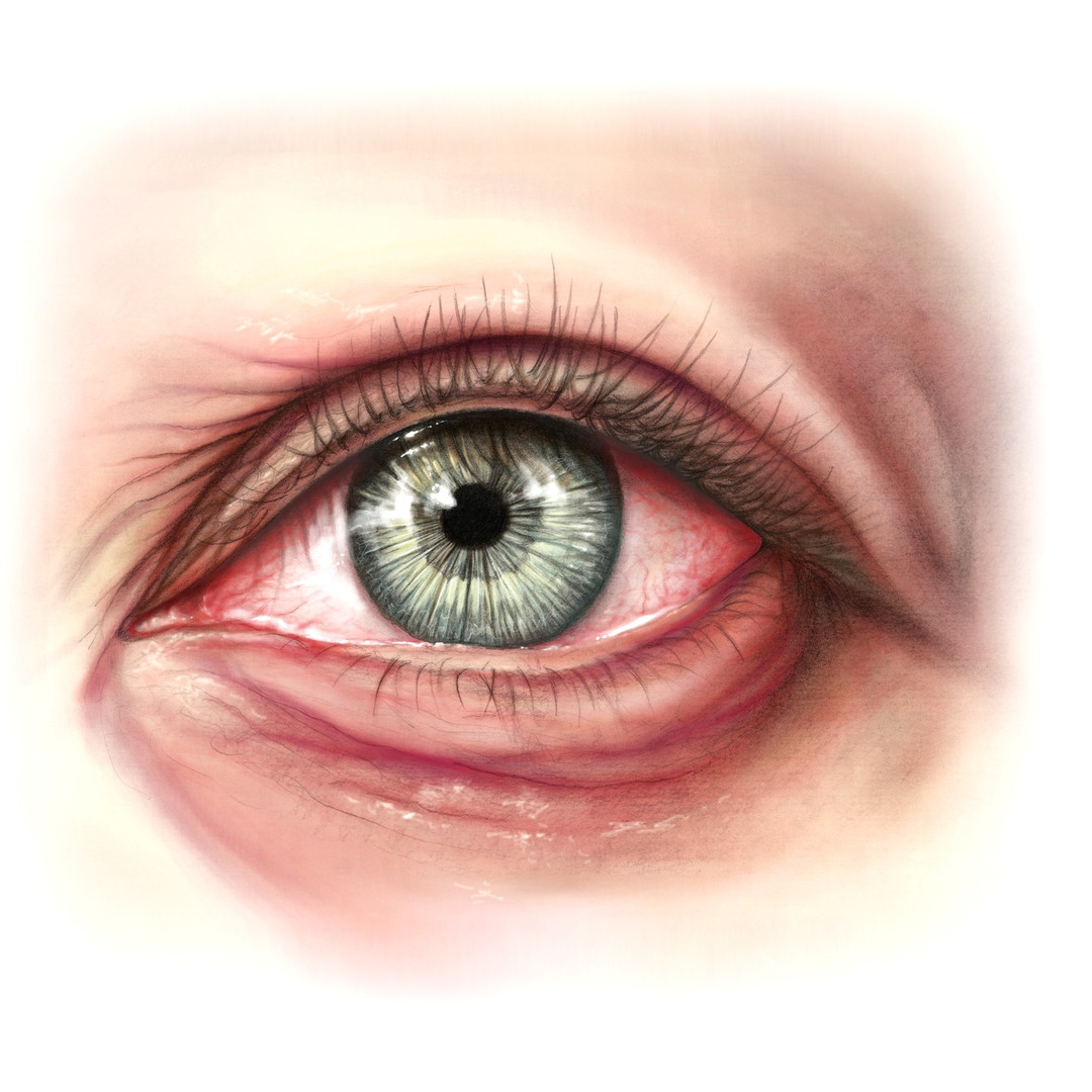 The Allergic Eye
