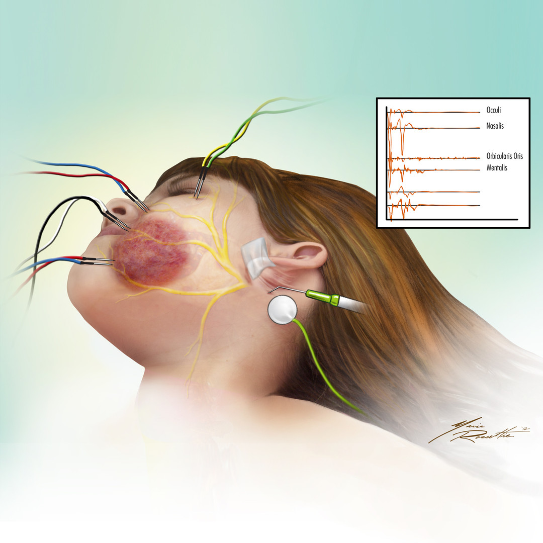 Facial Nerve Mapping