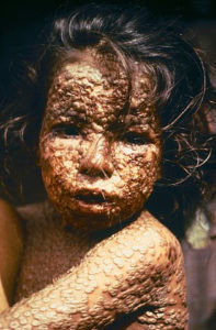 Child with active smallpox (Image:CDC/James Hicks)