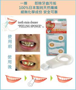 日本製潔牙擦子膠     一擦即除牙齒污垢