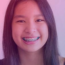 braces-for-teens_edited.jpg