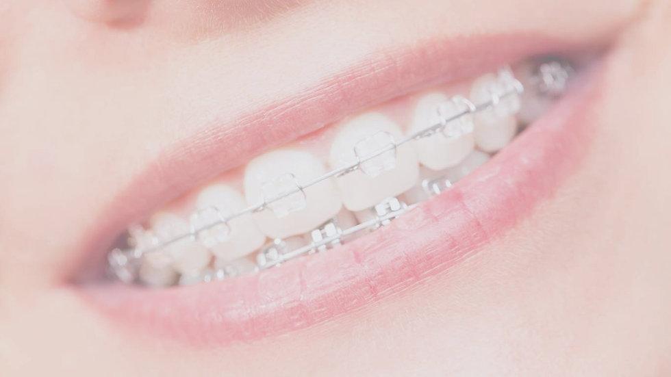 why-alpine-orthodontics_edited.jpg