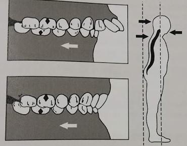 Постурология для ортодонтов и стоматологов