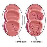cancer colorectal.jpg